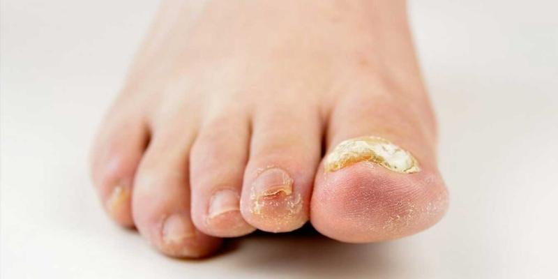 Ayak Tırnak Mantarına İlaç Önerileri Nelerdir?