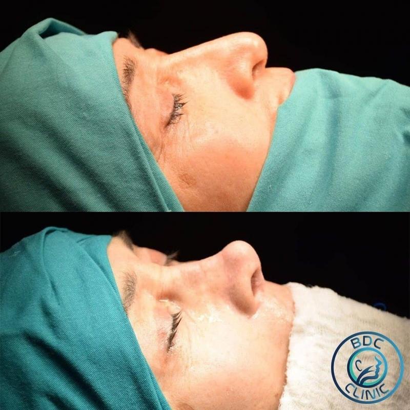 ClinicBdc Kulak Burun Boğaz ve Estetik Kliniği
